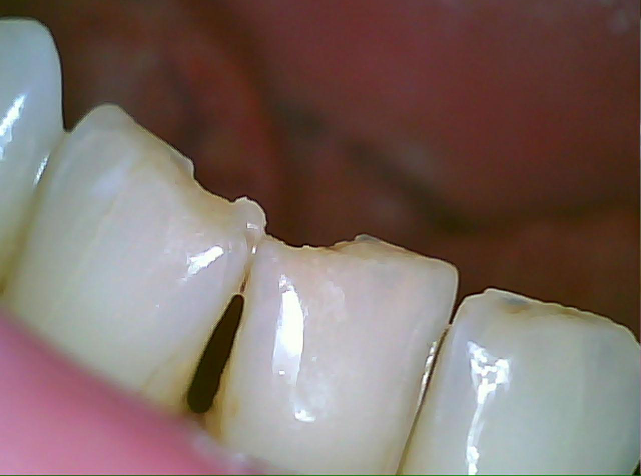File my own teeth can i do that diy dentistry damage solutioingenieria Images